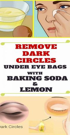 Remove Dark Circles & Under Eye Bags with Baking Soda & Lemon! Quantity is not mentioned. Remove Dark Circles & Under Eye Bags with Baking Soda & Lemon! Quantity is not mentioned. Baking Soda Face, Baking Soda And Lemon, Baking Soda Under Eyes, Tips And Tricks, Magic Tricks, Diy Beauty Hacks, Diy Hacks, Beauty Ideas, Beauty Secrets