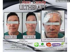 Best Price! Ulthera laser skin tightening Thailand