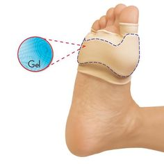 GEL BUNION SLEEVES | Better Senior Living Foot Pain Relief, Collections Etc, Bunion, Senior Living, Sleeves, Cap Sleeves