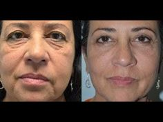 Facial aerobics are very effective in making men and women look years younger using Wendy Wilken's Facelift Without Surgery program. The best face exercises for a glowing face skin and for a more shapely face Facial Yoga, Facial Muscles, Face Facial, Face Skin, Facial Massage, Do Facial Exercises Work, Face Yoga Exercises, Fitness Exercises, Sagging Face