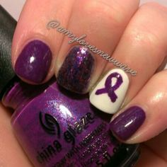 Nails for Lupus and Alzheimer's awareness.
