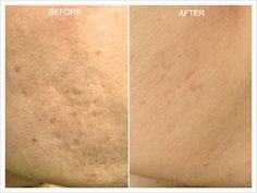Micro-needling before and after! You are in the right place about Prp knee Here we offer you the most beautiful pictures about the Prp cheveux you are look Acne Facial, Acne Skin, Acne Scars, Laser Aesthetics, Vellus Hair, Vampire Facial, Skin Needling, Beyond Skin, Skin Resurfacing