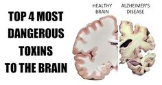 These 4 Toxins Are Damaging Your Brain! Avoid Them At All Cost!