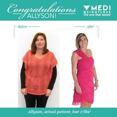 Hypnosis for weight loss rochester ny
