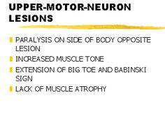 Crohn 39 s disease tcm tests biomed pinterest search for Upper motor neuron syndrome symptoms
