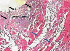fibrosi cardiaca