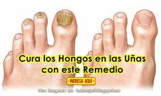 Cuando las uñas se vuelven amarillentas, gruesas y débiles existe un problema llamado médicamente ONICOMICOSIS, el cual aparte del prob...