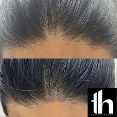 Beauty Nails, Beauty Makeup, Hair Makeup, Hairline Tattoos, Scalp Micropigmentation, Microblading Eyebrows, Bad Hair Day, Beauty Tricks, Beauty Industry