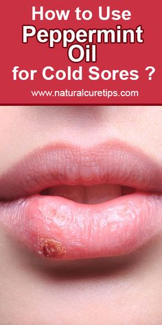 Cold sores are embarrassing, annoying and painful. So in this article we will learn the effective way to use peppermint oil for cold sores. Cold Sore Scab, Cold Sore Cure, Healing Cold Sore, Natural Healing, Cold Sore Essential Oil, Essential Oils For Migraines, Pepermint Oil Uses, Young Living Cold, Essential Oils Online