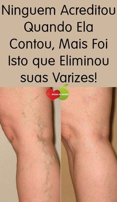 Acabe Com as Varizes Com Apenas Simples Ingredientes! Vik Vaporub, Dietas Detox, Chemistry Experiments, Stress, Little Bit, Varicose Veins, Play To Learn, Working With Children, Weight Loss Transformation