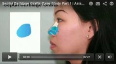 This is a case study of an augmentation rhinoplasty and what we mean by that is we want to actually augment some of the nasal features rather than reduce them. Watch the full video case study here: http://8west.ca/rhinoplasty/septal-cartilage-grafts-case-study-part-1/?utm_campaign=coschedule&utm_source=pinterest&utm_medium=Dr.%20Buonassisi%20%7C%20Fiore%20Skin%20Clinic%20and%208%20West%20Cosmetic%20Surgery