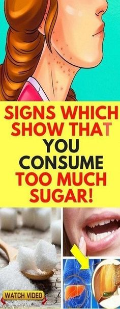 14 Signs Showing That Your Blood Sugar Is Very High - Get Healthy Magic Diabetes Remedies, Cure Diabetes, Type 1 Diabetes, High Blood Sugar Symptoms, Low Blood Sugar, Body Cells, Abdominal Fat, Diabetes Treatment, Health And Beauty Tips