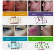 Before and after pictures that really do speak for themselves!! No wonder R+F is blowing all the other skincare companies out of the water in the US and Canada...and now Australia is the lucky country, because we are next!! Be at the forefront of this amazing opportunity! Email me - gwendab2@gmail.com