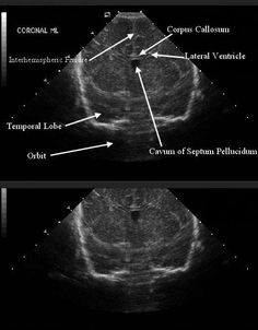 Intraventricular Hemorrhage in the Preterm Infant: Background, Pathophysiology, Etiology Ultrasound School, Ultrasound Physics, Vascular Ultrasound, Ultrasound Sonography, Retroverted Uterus, Ultrasound Technician, Corpus Callosum, Physician Assistant, Med School