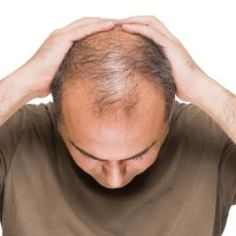 Dihydrotestosterone, also known as DHT, is a powerful androgen. It is linked with male pattern baldness and may hold the key to preventing hair loss.