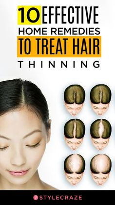 10 Effective Home Remedies To Treat Hair Thinning haircare homeremedies remedy remedies Thinning Hair Remedies, Hair Remedies For Growth, Home Remedies For Hair, Hair Loss Remedies, Hair Fall Remedy Home, Healthy Hair Remedies, Soft Hair Remedies, Health Remedies, Hair Thickening Remedies