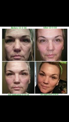 Looking for a new skin regimen? Check out the new exfoliating peel from It Works. www.wrapandrock.myitworks.com