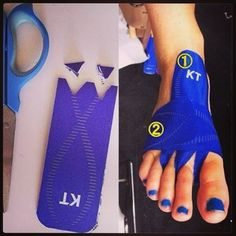 KT Tape app for metatarsal stress fracture. (Similar technique to the app for Morton's Neuroma)