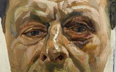Lucian Freud self-portrait with black eye