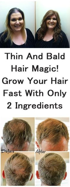 Thin and Bald Hair Magical Growth of Your Hair Fast With Only 2 Ingredients Thin and bald hair is a big issue, especially for women. Thick and shiny hair is considered as a hallmark of beautiful women. How To Grow Your Hair Faster, How To Regrow Hair, Oil For Hair Loss, Hair Starting, Hair Loss Remedies, Remedies For Thinning Hair, Hair Regrowth, Biotin Hair Growth, Hair Loss Treatment