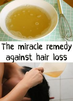 A lot of women are having problems with hair loss. Find out a miracle ingredient… A lot of women are having problems with hair loss. Find out a miracle ingredient…, Hair Loss Causes, Prevent Hair Loss, Hair Remedies For Growth, Hair Loss Remedies, Hair Growth, Male Pattern Baldness, Regrow Hair, Hair Falling Out, Recipes