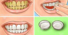Pour blanchir vos dents et améliorer votre santé bucco-dentaire, fiez-vous aux puissantes vertus de l'huile de coco....