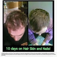 Whaaaaaaat?!?! 10 days only??! Hair Skin Nails is no joke  Who is ready to try it and get 40% off?! Message me to get yours! #longhair #iwantlonghair #longhairdontcare #growhairgrow #growhair #beard #beards #beardsofinstagram #beardgang #longerhair #strongnails #hair #haircut #hairstylist #hairdresser #hairstylist #haircare #beardgrowth #beardgrowing #balding #bald #baldspot by mrs7emery