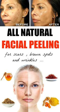 All Natural Facial Peeling for Brown Spots, Scars and Wrinkles - Instant Beautyify!