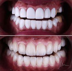 Your teeth should look natural, not fake! Dental Braces, Dental Implants, Dental Care, Teeth Health, Dental Health, Oral Health, Lente Dental, Dental Aesthetics, Veneers Teeth