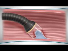 What is endoscopic mucosal resection? - YouTube