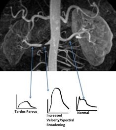 The renal veins are paired blood vessels that return blood back to the IVC. The left renal vein is the longer one and courses between the superior mesenteric artery and aorta. Vascular Ultrasound, Ultrasound Sonography, Superior Mesenteric Artery, Kidney Anatomy, Cardiac Sonography, Arteries And Veins, Kidney Disease, Radiology
