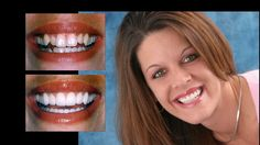 Porcelain veneers and smile makeover. Cosmetic dentistry by Dr. Mike Maroon of Advanced Dental in Berlin, CT.
