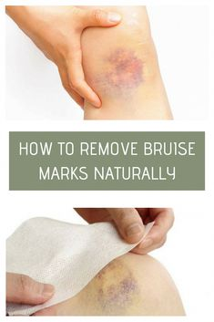 How To Remove Bruise Marks Naturally Health Amp Remedies How To Remove Bruises, Heal Bruises, House Cleaning Tips, Cleaning Hacks, Cleanse Me, Cleaning Painted Walls, Glass Cooktop, Clean Dishwasher, Health Remedies