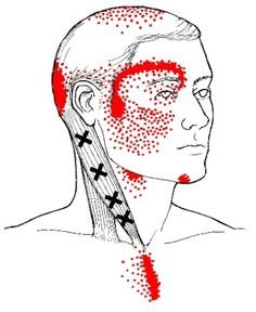 sternocleidomastoid muscle sternal branch trigger points and referred pain pattern