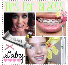 """""""Tips for having braces"""" by the-polyvore-tips ❤ liked on Polyvore"""