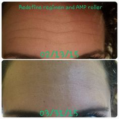 Forehead fine lines treated with Redefine regimen and AMP MD roller after 6 weeks.