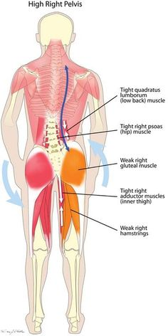 High Hip A misaligned pelvis (one side higher than the other) is often related to back pain or restriction in movement that affects one side of your body more than the other. - See more at: http://www.losethebackpain.com/blog/2012/10/02/back-muscle-pain/#sthash.U2bLyee3.dpuf