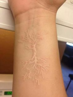 40 Stylish White Ink Tattoos Ideas You Will Love Today Skin Color Tattoos, Body Art Tattoos, Sleeve Tattoos, Tatoos, Tattoo Ink Colors, Scar Tattoo, Tattoo Und Piercing, Birthmark Tattoo, Tattoos On Scars