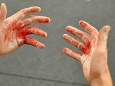 CrossFit Headway » CrossFit Hand Care