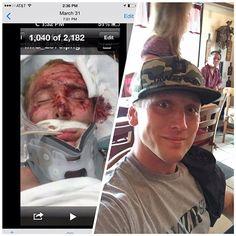 Brandon Harris' Recovery & Jawzrsize!