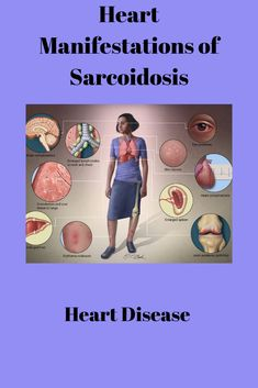 Sarcoidosis is an inflammatory disease that can affect any organ. However, the most devastating organs that are affected are the lungs, heart, and kidneys.Ninety percent of the time, sarcoidosis affects the lungs. Sarcoidosis affects people from all around the world. This disease commonly affects people between the ages of 20 and 40. Women are more affected than men. The highest incidence of granulomas has been observed in Northern European countries. #sarcoid, #sarcoidosis