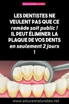 Les dentistes ne veulent pas que ce remède soit public ! Il peut éliminer la plaque de vos dents en seulement 2 jours !