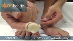 Digi Cushions for Toes or Fingers Help Corns Calluses