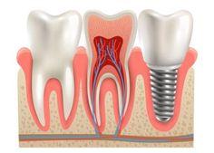 Psychotic Dental Care Tips Heal Cavities Dental Implant Procedure, Best Dental Implants, Teeth Implants, Teeth Whitening That Works, Teeth Whitening System, Wisdom Teeth Funny, Dental Check Up, Dental Posters, Heal Cavities