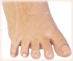 best otc nail fungus treatment | Nail Fungus Treatment | Pinterest ...