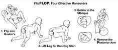 FlipFLOP: Four Steps to Remember – Midwifery Today shoulder distocia Spiritual Midwifery, Midwifery Schools, Anime Pregnant, Labor Positions, Student Midwife, Mpreg Anime, Baby Information, Ob Nursing, Pregnancy Labor