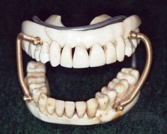 In the 1700',s the end of the Renaissance, dentistry began to experiment with the use of human teeth, animal teeth and carved ivory to replace missing teeth. These dentures usually did not fit well and took a long time to fashion.