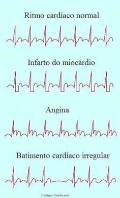 Medicine Notes, Medicine Student, Cardiac Nursing, Nursing Mnemonics, Medical Photography, Medical Brochure, Nursing Student Gifts, Medical Laboratory Science, Medical Anatomy