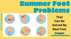 Here are some of the most common foot problems people experience during summer, know how to save your foot skin for more details read out the article. Best Foot Cream, Fungal Nail Infection, Sunscreen Spf 50, Summer Feet, Nail Time, Foot Care, What You Can Do, Physical Activities, The Cure