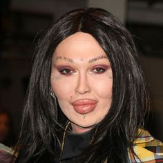 Shocking Celebrity Plastic Surgery Disasters - Latest Celebrity Photos and Pictures at Hollyscoop